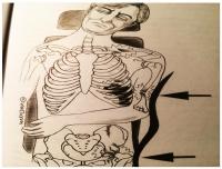 Uderzenie boczne. Uraz obojczykowy, stłuczenie płuc, uszkodzenie serca, obrażenia układu kostnego