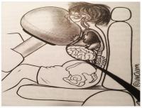 Poduszki (ogromna prędkość) obraż.: czaszki, twarzy, klatki piersiowej (oderwania serca), kręgosłupa
